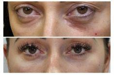 Výplně na bázi kyseliny hyaluronové - Žena 30 let, korekce kruhů pod očima kyselinou hyaluronovou