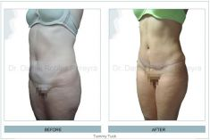 Abdominoplastia - Foto Antes de - Dr. Daniel Robles Pereyra