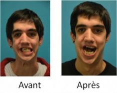 Chirurgie réparatrice du visage - Cliché avant