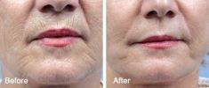 ARTMED Klinika estetické a laserové dermatologie - fotka před - ARTMED Klinika estetické a laserové dermatologie