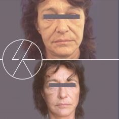 Facelift - Photo before - MUDr. Lucie Kalinová PhD.