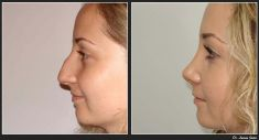 Dr. Lucian Fodor PhD - Female Rhinoplasty/Septoplasty. Case 1 Photo 1