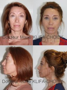 Dr Marie Klifa-Choisy - lifting du visage