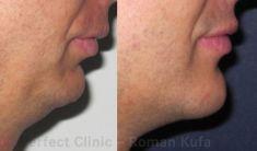 Perfect Clinic - centrum estetické medicíny - Photo before - Perfect Clinic - centrum estetické medicíny
