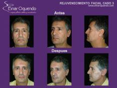 Dr. Einar Fernando Oquendo Villacres - Foto Antes de - Dr. Einar Fernando Oquendo Villacres