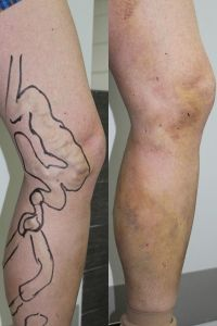 Varicose veins laser treatment - Photo before - ARS ESTETICA – Klinika Medycyny Estetycznej i Laseroterapii