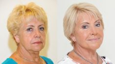 Dermal fillers - Photo before