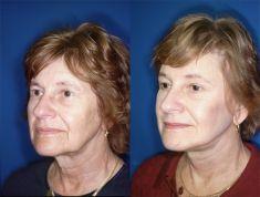 Facelift (operace obličeje), SMAS lifting - fotka před - MUDr. Issam Al Awa MD