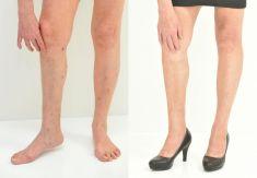Léčba křečových žil (varixů) - fotka před - Klinika YES VISAGE - klinika estetické medicíny a plastické chirurgie