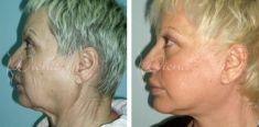 Facelift - Photo before - Violeta Skorobać Asanin MD, PhD