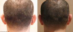 Otoplastie (Chirurgie esthétique des oreilles) - Cliché avant - Dr Maria Elisa Pecorelli