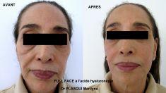 Dr Marilyne Plasqui - Traitement complet du visage par injections de produits de comblements (pli d