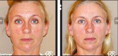 Botox/Dysport - Eliminar arrugas - Foto Antes de - Dr. Kai Oliver Kaye
