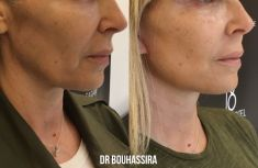 Dr. Jonathan Bouhassira - redrapage ovale du visage et cou