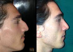 Rinoplastica - Foto del prima - Dott. Massimo Re - Chirurgo plastico ed estetico