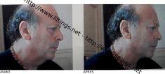 Chirurgie du double-menton - Cliché avant - Dr Vladimir Mitz