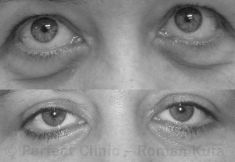 Eyelid surgery (Blepharoplasty) - Photo before - Perfect Clinic - centrum estetické medicíny