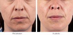 Facelift Silhouette Soft - fotka před - Laserová dermatologická klinika ALTOS