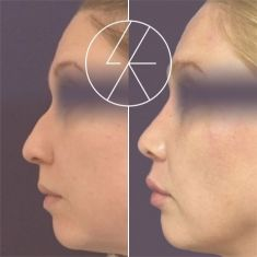 Plastika nosu (Rhinoplastika) - fotka před - MUDr. Lucie Kalinová PhD.