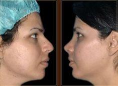 Cirugía de la nariz (Rinoplastia) - Foto Antes de - Dr. Manuel Gutierrez Romero