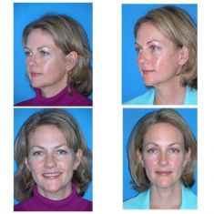 Brow lift - Photo before - M.D., F.A.C.S. Bernard A. Shuster