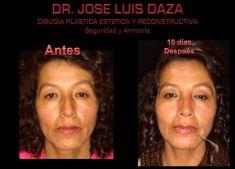 Dr. Jose Luis Daza Flores - Foto Antes de - Dr. Jose Luis Daza Flores