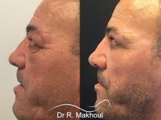 Dr Rani Makhoul - Cliché avant - Dr Rani Makhoul