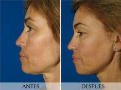 Liposucción - Basada en radiofrecuencia - Foto Antes de