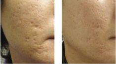 Laser frakcyjny/Fraxel (usuwanie przebarwień, zmian potrądzikowych, odmładzanie skóry) - Zdjęcie przed - dr Krystyna Lubelska