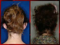 Operazione orecchie (Otoplastica) - Foto del prima - Dott. Dario Rochira