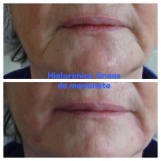 Implantes faciales - Tratamiento para mejorar el rostro brindando volumen perdido. Nos permite rellenar surcos en entrecejo, nasogenianos y marioneta. Da volumen en pómulos, labios, mentón, maxilar inferior Mejora la apariencia de tu nariz levantando la punta, desaparece la molesta giba, corrige imperfecciones luego de la cirugía. Mejora tu sonrisa eliminando las linas del código de barras, da volumen a los labios recobrando su juventud y los delinea para dar una apariencia de mayor proyección.