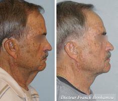 Lifting du visage - Cliché avant - Dr Franck Benhamou