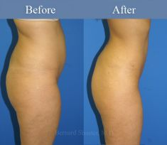 Liposuction - Photo before - M.D., F.A.C.S. Bernard A. Shuster