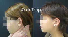 MUDr. Evžen Trupar Ph.D. - fotka před - MUDr. Evžen Trupar Ph.D.