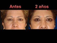 Eyelid surgery (Blepharoplasty) - Photo before - Dr. Jose Luis Daza Flores