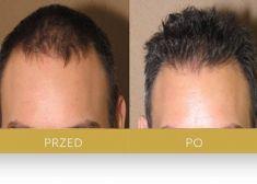 Dr Turowski Hair Restoration Clinic - Photo before - Dr Turowski Hair Restoration Clinic