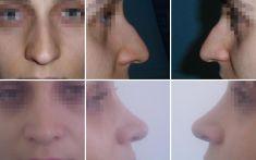 Rhinoplasty (Nose Job) - Photo before - Dr. Sorin Parasca