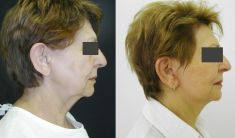 Facelift - Photo before - MUDr. Karel Urban
