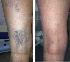 Eliminare capillari e teleangectasie con laser - Foto del prima - Dott. Alvise Cavallini MD, PhD