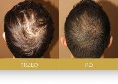 Hair Transplant - Photo before - Dr Turowski Hair Restoration Clinic