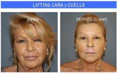 Lifting facial - Foto Antes de - Dr. Ruben F. García Guilarte