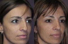 """Rinoplastica - Sui tre quarti è evidente il risultato """"naturale"""" conseguito e congruo con le gradevoli proporzioni del viso"""