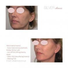 Laser frakcyjny/Fraxel (usuwanie przebarwień, zmian potrądzikowych, odmładzanie skóry) - Zdjęcie przed - dr Adam Srebrzyński - Silver Clinic