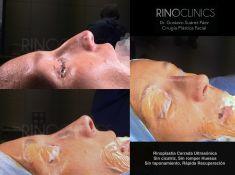 Cirugía de la nariz (Rinoplastia) - Rinoplastia ultrasonica abordaje cerrado Sin cicatriz, sin taponamiento, rápida recuperación.