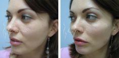 The facial implants surgery - Photo before - Violeta Skorobać Asanin MD, PhD