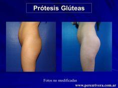 Aumento y Modelado de Glúteos - Foto Antes de - Dr. Fabian Peréz Rivera