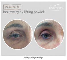 Bezinwazyjny lifting powiek – Plasma IQ - Efekt po jednym zabiegu liftingu z użyciem Plasma IQ  Wrocław  Kaniowscy Dermapuls