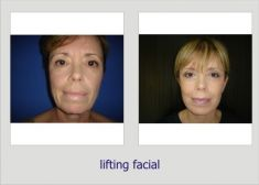Facelift - Photo before - Dr. Lucian Fodor PhD