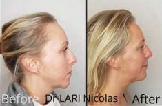Génioplastie - Chirurgie esthétique du menton - Cliché avant - Dr Nicolas Lari