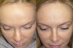 Rinoplastica - Nella visione dall'alto, appare chiaro il beneficio delle osteotomie, che hanno ristretto la larghezza del naso